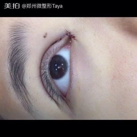 三门峡鹤壁信阳漯河微整形全切韩式欧式芭比双眼皮修复开眼角芭比眼
