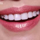 🎈冬日来一抹淡橘色自然好气质,亮白牙齿驾驭所有口红,现在你只需一次就可以拥有这么白的牙齿,不是烤瓷牙不是冷光美白不磨牙不酸牙哦😁咨询微信yuya166