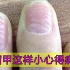 通过指甲竖纹判断身体状况💅#美妆#