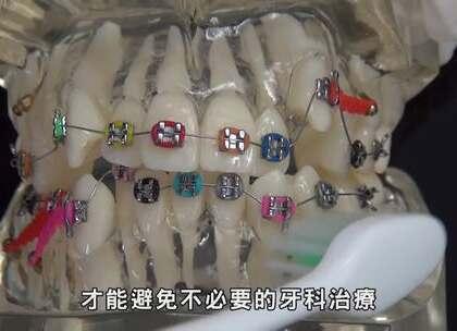 【看好你的牙】第13集-鋼牙戴好久,什麼時候可以拆啊!😷by魔法牙醫 潘韞珊院長✨ 牙齒矯正的黃金時期是11到13歲,在這個時期矯正的好處是矯正速度會加快,穩定度增加😊有戽道的人,記得18歲以後再找醫師做評估喔!😘#牙齒矯正##全瓷牙冠##貼片#