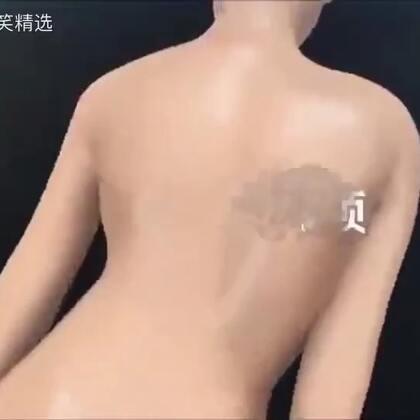 脊柱侧弯矫正术3D动画演示,看完不自觉地直了直腰……