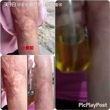 #去疤痕伤疤#