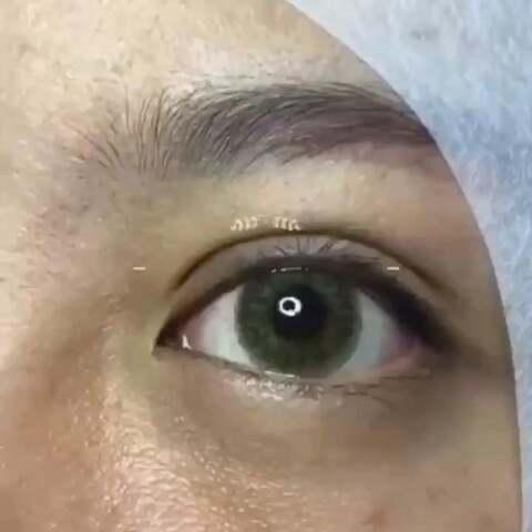 无痕迹双眼皮的原理_纳米无痕双眼皮的原理和步骤 纳米无痕双眼皮的线是什么线