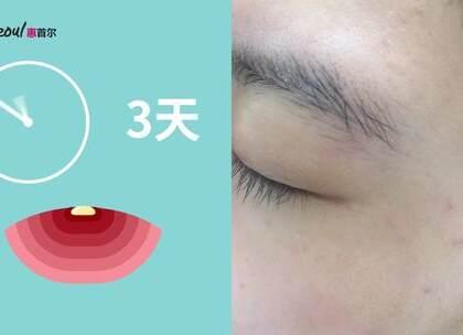 痘痘,痘印,伤口处护理,疤痕是不少小仙女们的困扰吧!在韩国几乎人手一只的积雪草软膏,赶紧打开视频看看它神奇的功效!http://a.app.qq.com/o/simple.jsp?pkgname=com.hsmobile #痘痘# #痘印# #祛疤#