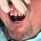 牙齿修复,简直是换了一副牙!👍#涨姿势#