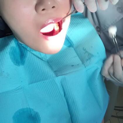 #日志##补牙#年纪大了,牙齿不中用😂😂😂