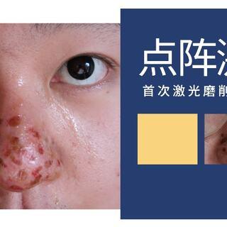 點陣激光對于痘印都坑痘疤毛孔粗大有療效嗎? #點陣激光##激光##醫美面膜#